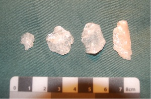 Selection of Quartz Flakes